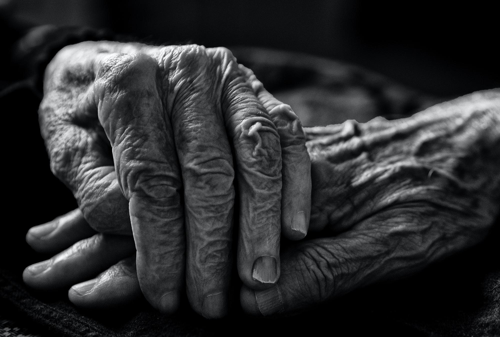 Alzheimer's Disease Genetics