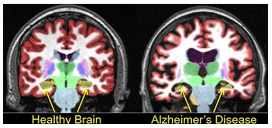 healthy brain vs alzheimers